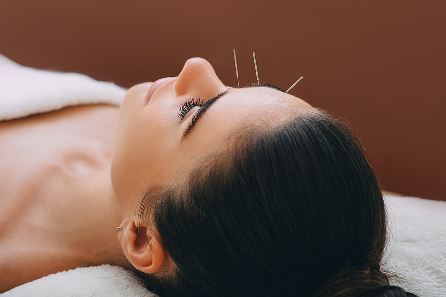Beautiful woman receiving an acupuncture treatment for headache